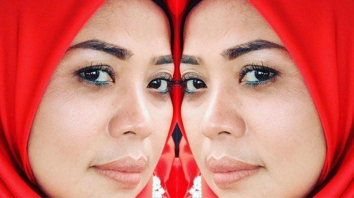 Muzdalifah Jadi Muda dan Cantik, Beda dengan Amy Qanita, Ada yang Curiga Istri Fadel Permak Wajah