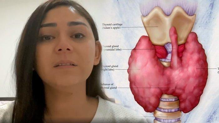 Dennis Rizky Hanya 2 Kali Jenguk, Selama Thalita Latief Dirawat karena Kanker Tiroid