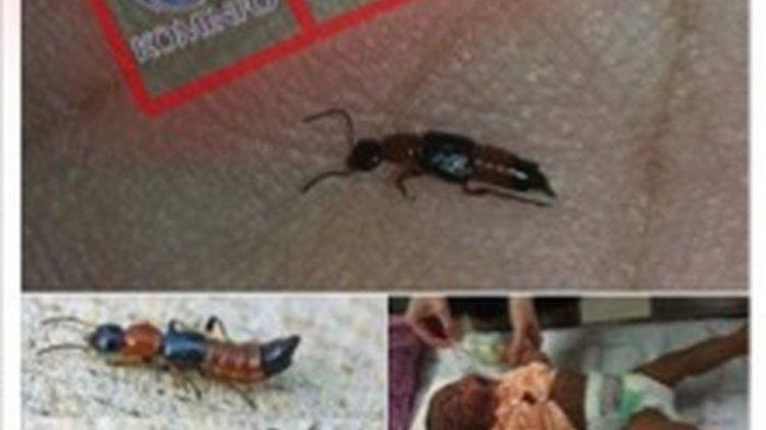 Waduh Serangan Tomcat Muncul Lagi, Begini Cara Pencegahan dan Mengobati Disengat Semut Semai