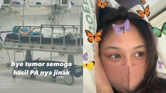 Payudara Wanita Muda Jakarta Ini Benjol, Mengidap Tumor Gara-gara Sering Menyantap Makanan Instan