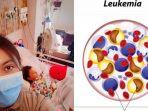 ciri-orang-mengidap-leukimia_20180719_092806.jpg