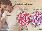 ilustrasi-penyakit-leukimia_20180718_084528.jpg