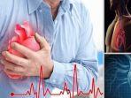 serangan-jantung-ilustrasi.jpg