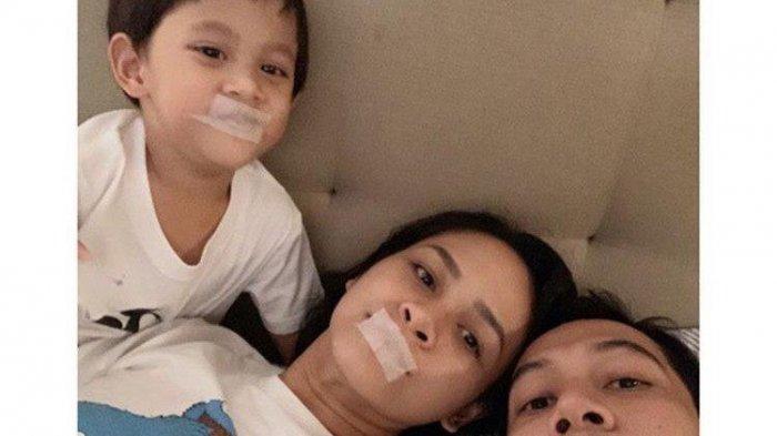 Andien Terapkan Tidur dengan Mulut Diplester, Dokter Ingatkan Berbahaya bagi yang Punya Penyakit Ini
