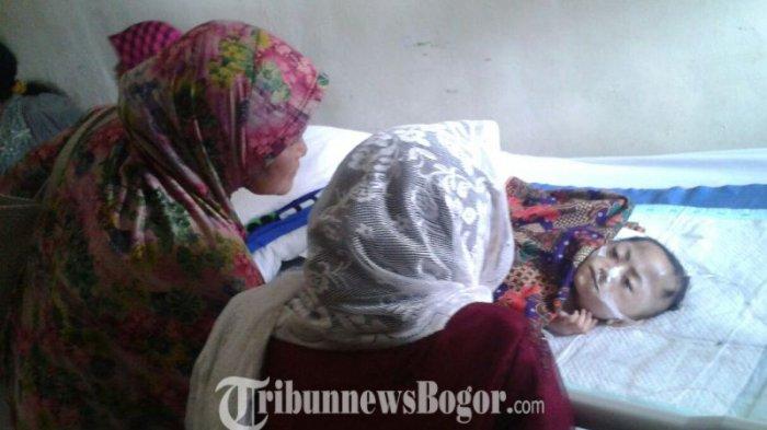 Bocah Gizi Buruk di Bogor Meninggal dalam Pelukan Ibu, Lontarkan Senyum Sebelum Tutup Usia