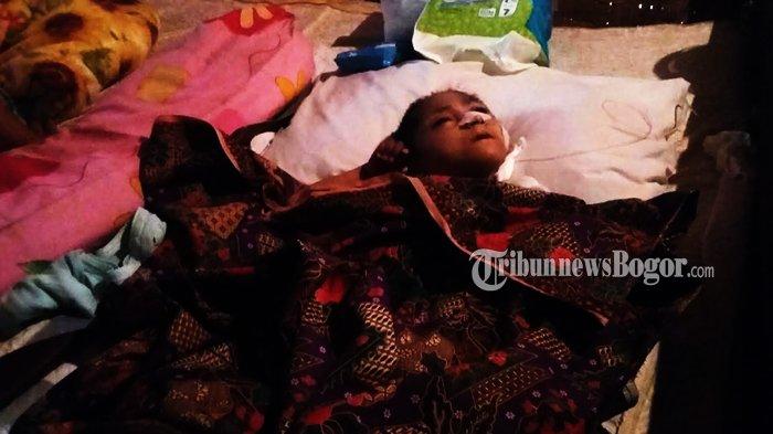 Nenek Munarsih Sumringah Cucunya yang Menderita Gizi Buruk Sudah Diizinkan Pulang dari Rumah Sakit
