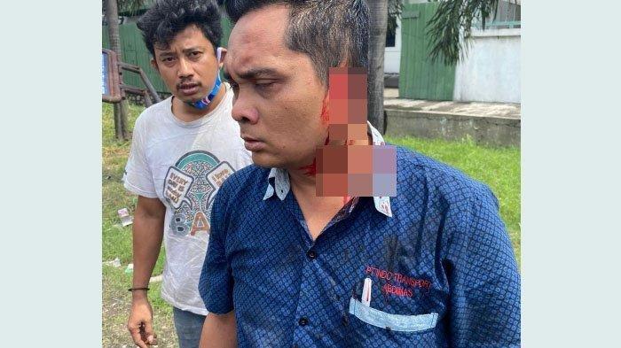Arfan Affandi, kodektur bus Mandala sesaat sebelum dilarikan ke rumah sakit akibat telinganya putus setelah digigit pengendara motor yang jengkel karena tak mendapatkan kesempatan untuk menyalip bus, Jumat (4/12/2020).
