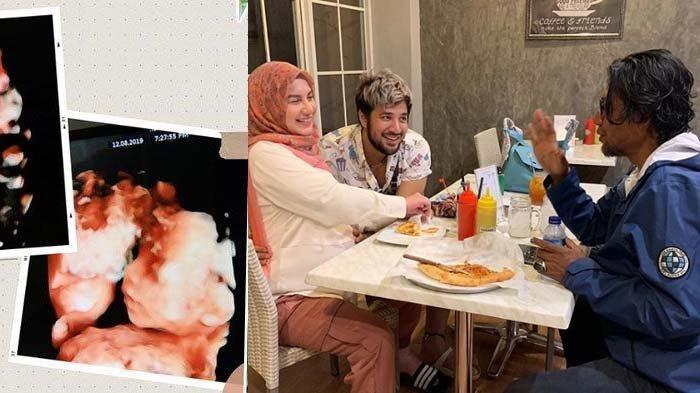 Ammar Zoni Pingsan Ketika Tahu Bayi Kembarnya Wafat, Irish Bella yang Menguatkan