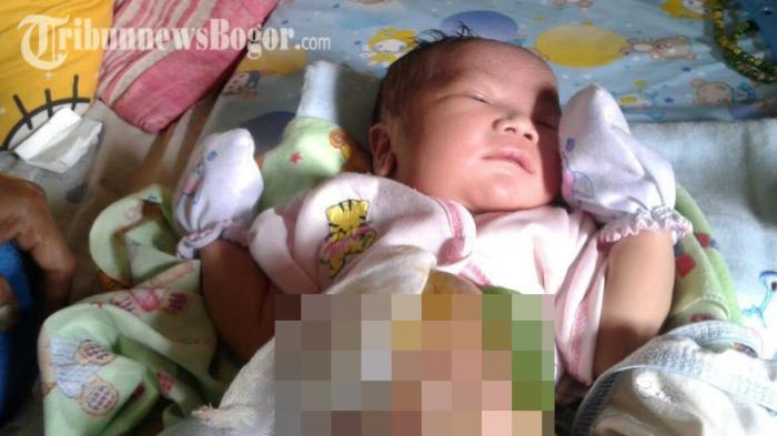 Dokter Mengucap 'Inalilahi' Saat Bayi Ini Lahir, Ternyata Ada Benjolan Besar di Perutnya