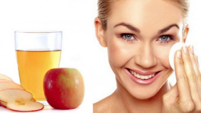 Sari Cuka Apel Bisa Bantu Kempeskan Jerawat ? Ini Kata Ahli