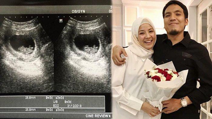Masuki Usia 25 Tahun, Natasha Rizky Bersyukur Dapat Banyak Kado Tak Terduga