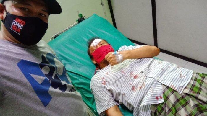 Eggi Sudjana Kecelakaan Tabrak Pembatas Jalan di Cibinong Bogor, Diduga karena Ngantuk