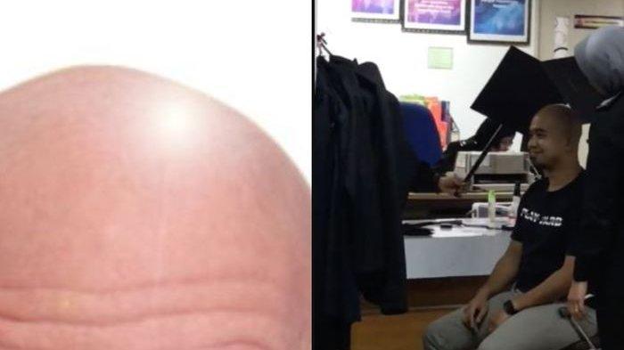 Karena Berkepala Botak, Pria Malaysia Terpaksa Lakukan Ini Saat Foto untuk Paspor di Kantor Imigrasi