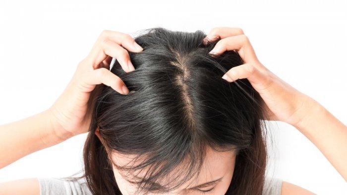 2 Cara Kutu Rambut Menular, Begini Cara Membasminya, Cukup Pakai daun Salam