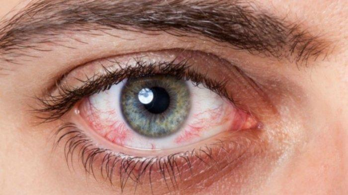 BAHAYA ! Jangan Sering Pakai Obat Tetes Mata, Bisa Sebabkan Kebutaan, Ini Cara Atasi Sakit Mata