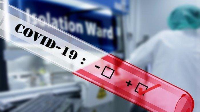 Catat, Pemprov DKI Jakarta Tentukan 3 Kriteria Warga untuk Ikut Rapid Test Covid-19