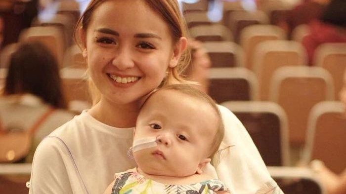 Baru Tahu Anak Joanna Alexandra Idap Penyakit Langka Sejak Lahir, Kenali Yuk CMD dan Gejalanya!