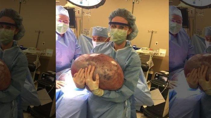 Dikira Gemuk Perempuan Ini Ternyata Idap Penyakit Kista Ovarium Seberat 22 Kilogram Tribunnews Bogor