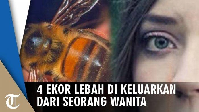 Usai Bersihkan Kuburan, Wanita Ini Alami Sakit di Bagian Mata, Saat Diperiksa Dokter Temukan 4 Lebah