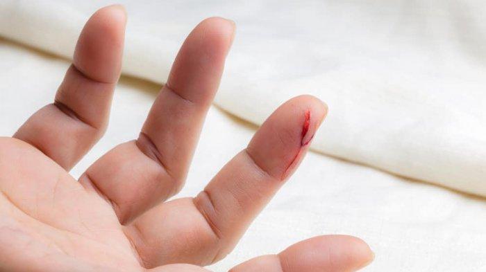 Ilustrasi luka sayat di jari