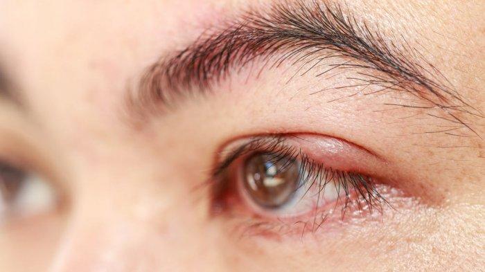 Cara Mengobati Mata Bintitan Secara Praktis, Kompres Pakai Kantong Teh