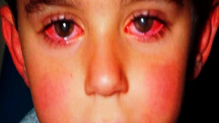 Saling Pandang Disebut Bisa Bikin Penyakit Mata Merah Jadi Menular, Mitos atau Fakta ?