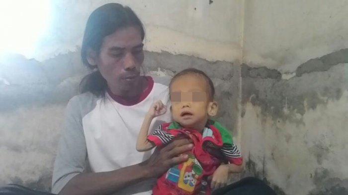 Tiga Anak yang Tinggal Dekat Istana Bogor Ini Tubuhnya Kurus, Nasib si Bungsu Kini Mengkhawatirkan