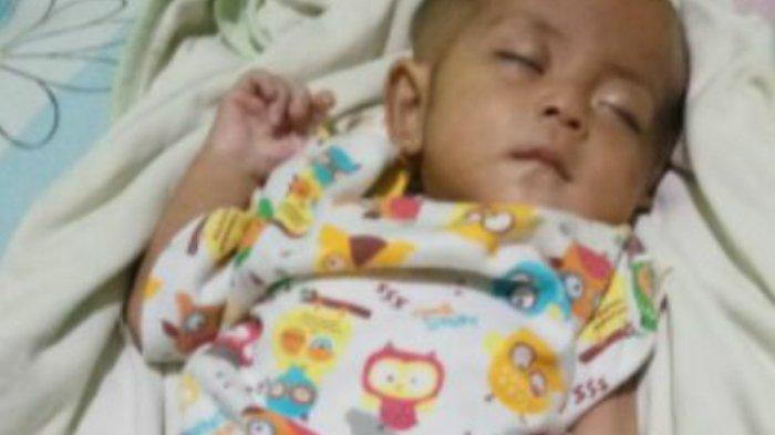 Berat Badan Bayinya Terus Menurun Karena Penyakit Langka, Sang Ibu Tak Sanggup Beli Susu