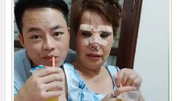 Nikahi Brondong, Nenek 62 Tahun Ini Rela Permak Wajahnya Demi Terlihat Muda, Gimana Hasilnya?