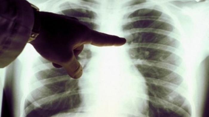Ini 5 Penyebab Terkena Kanker Paru-paru Meski Tidak Merokok, Simak Penjelasannya