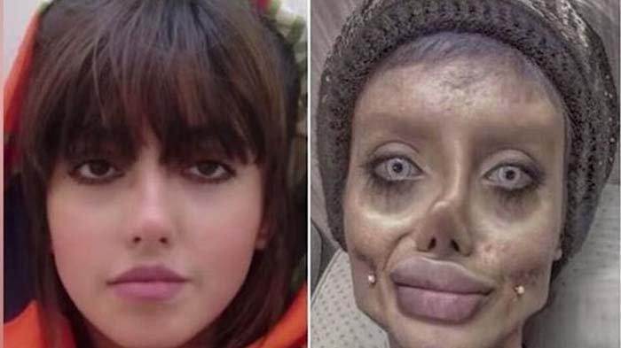Sempat Divonis 10 Tahun Penjara, ''Zombie Angelina Jolie'' Kini Resmi Dibebaskan
