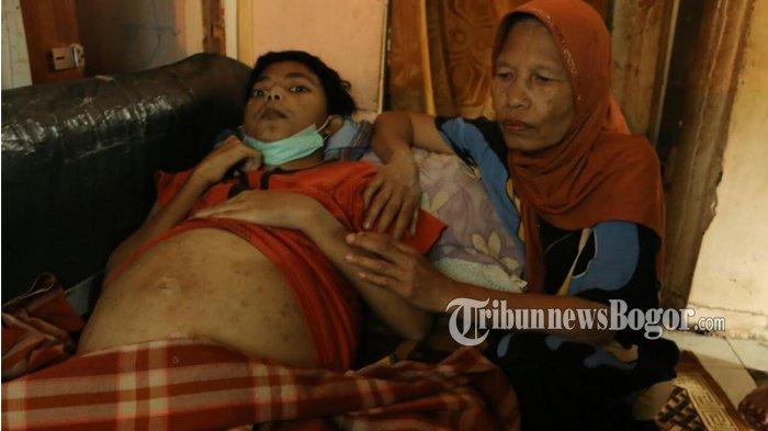 Sempat Khawatir Soal Biaya, Pria Penderita Perut Membesar Kini Dirawat di RSUD Kota Bogor