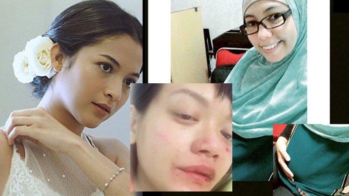 TERPOPULER, Riasan Wajah Putri Marino, Dylan Sada Babak Belur, Pegawai BKPP Kecelakaan