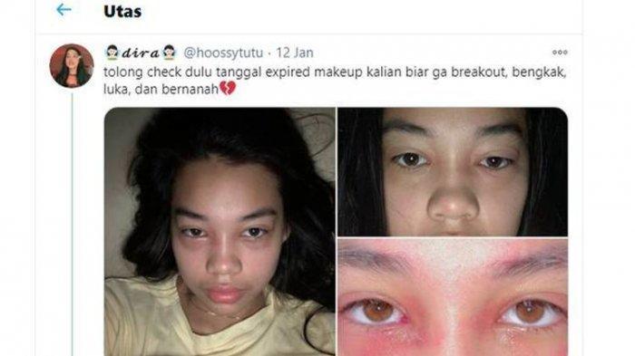 Viral Pakai Make Up Expired, Muka Wanita Ini Bengkak dan Bernanah, Dokter Kulit Beri Peringatan