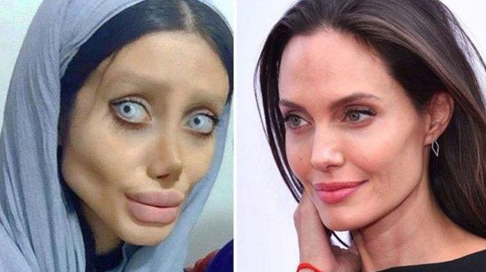 Demi Mirip Angelina Jolie, Wanita Ini Rela Oplas 50 Kali, Hasilnya Malah Jadi Zombie & Masuk Penjara