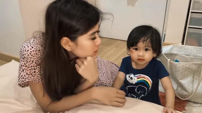 Tangis Syahnaz Pecah Lihat Wajah Zunaira, Adik Raffi Ungkap Insiden yang Menimpa Anak Kembarnya