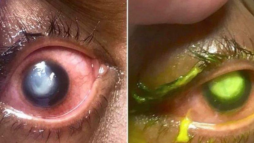 bahaya-lensa-kontak-tidur-tak-dilepas.jpg