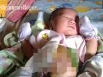 bayi-benjolan-di-perut_20160919_181231.jpg