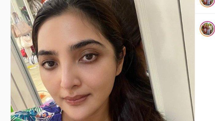Tiga Hari Jelang Pernikahan Aurel, Penyakit Ashanty Mendadak Kambuh, Sempat Kesakitan dan Gatal