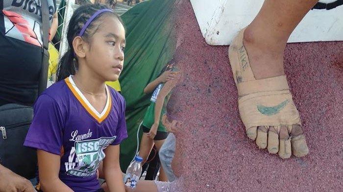 KISAH Mengharukan Atlet Lari Anak Lomba Pakai Sepatu Berbahan Perban Bedah, Bisa Raih 3 Medali