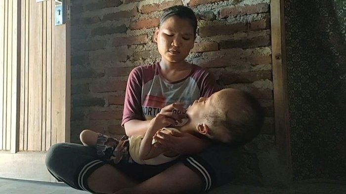 Ada Balita 5 Tahun Derita Hidrosefalus di Indramayu, Dinkes akan Rujuk ke Fisioterapi RS Pertamina