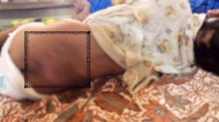 Bocah 7 Tahun di Pangalengan Diduga Jadi Korban Kekerasan Orang Tua, Sekujur Tubuhnya Penuh Luka