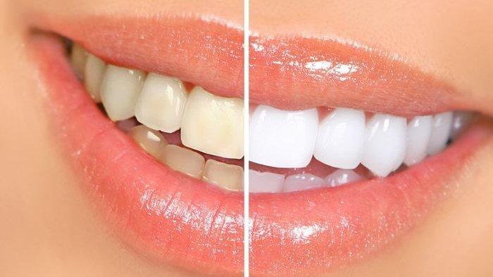 Gigi Anda Kuning? Ternyata Konsumsi Buah Bisa Membantu Memutihkan Gigi Kuning, Cek Buah Apa Saja