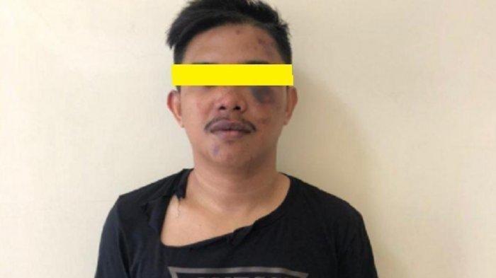 Dosen Jadi Korban Salah Tangkap, Wajah & Kepala Dipukul Polisi di Makassar: Saya Kira Itu Ajal Saya