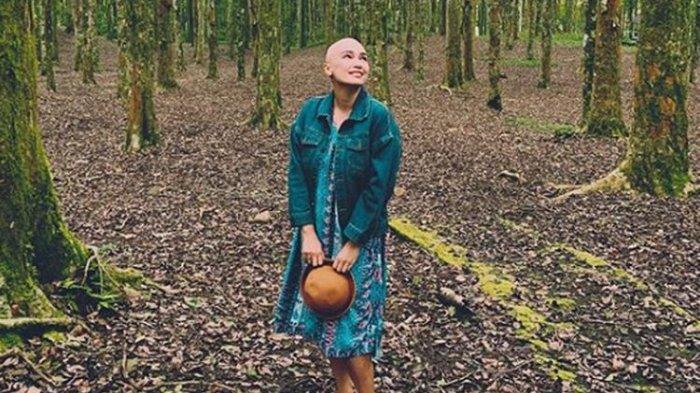 Artis Peran Feby Febiola Kini Plontos, 'Membuka Diri ke Publik Itu Tak Mudah, Aku Pilih Kemoterapi'