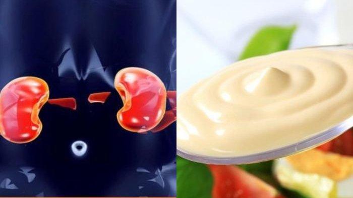 Tanda-tanda Ginjal Anda Sudah Kronis, Hilang Selera Makan Hingga Pembengkakan Pada Kaki