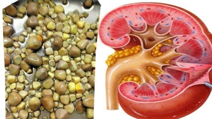 Bumbu Dapur Ini Ternyata Obat Ampuh Sembuhkan Batu Ginjal, Darah Tinggi & Diabetes Juga Bisa Sembuh