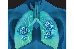 Kenali Berbagai Jenis Kanker Paru-paru dan Gejalanya yang Sering Kali Tidak Diketahui