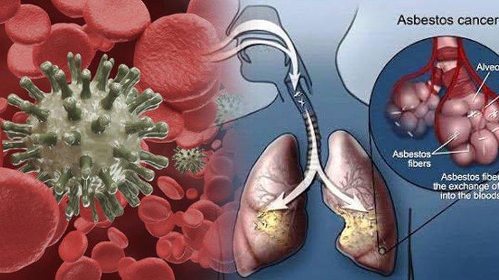 Demi Kesehatan, Coba Bersihkan Paru-paru Anda dengan 5 Bahan Alami Ini, Begini Cara Menggunakannya