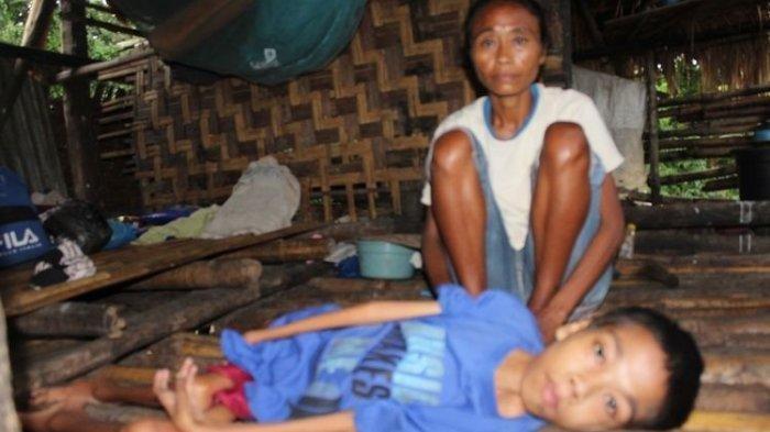 Cerita Pilu Regina dan 2 Anaknya yang Lumpuh, Hidup Miskin Tinggal di Gubuk Reot Tak Layak Huni